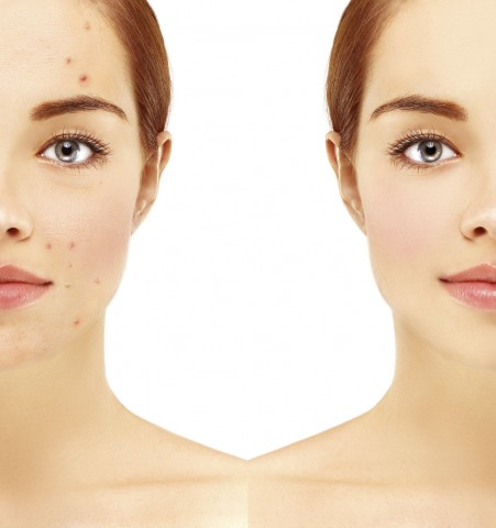 Okanagan Skin Care: Acne Treatment
