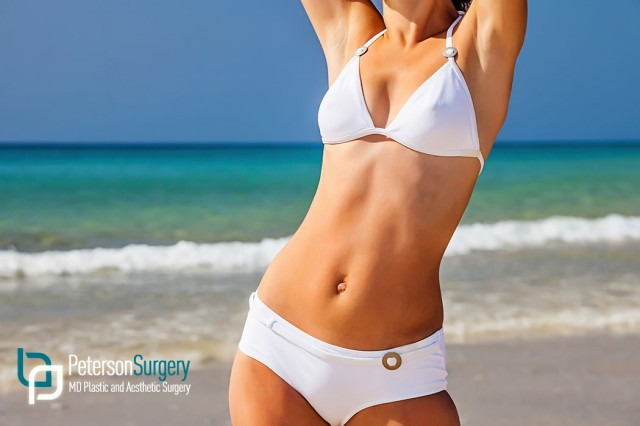 8 Tips for Recovery After a Tummy Tuck