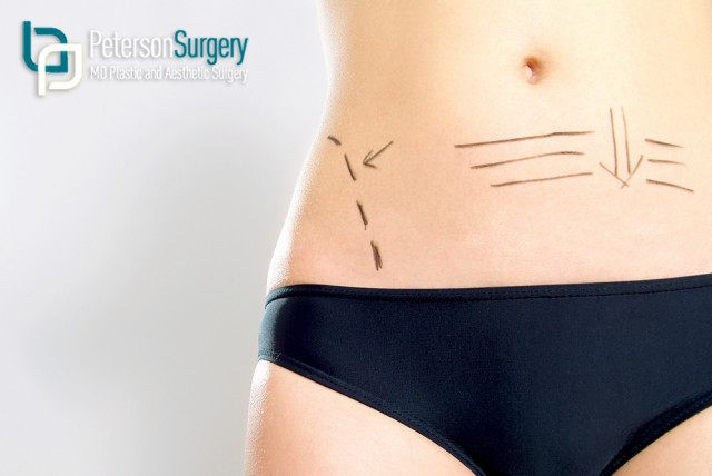 Kelowna Plastic Surgery: Not Just About Looks