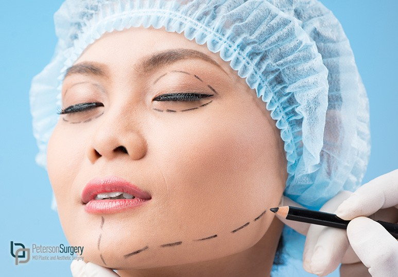 kelowna chin augmentation surgery