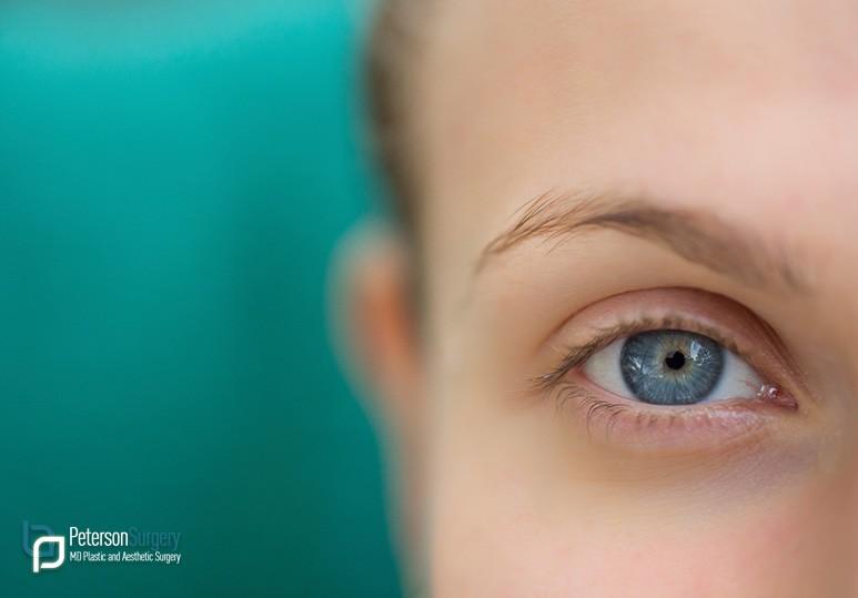 eyelid surgery kelowna