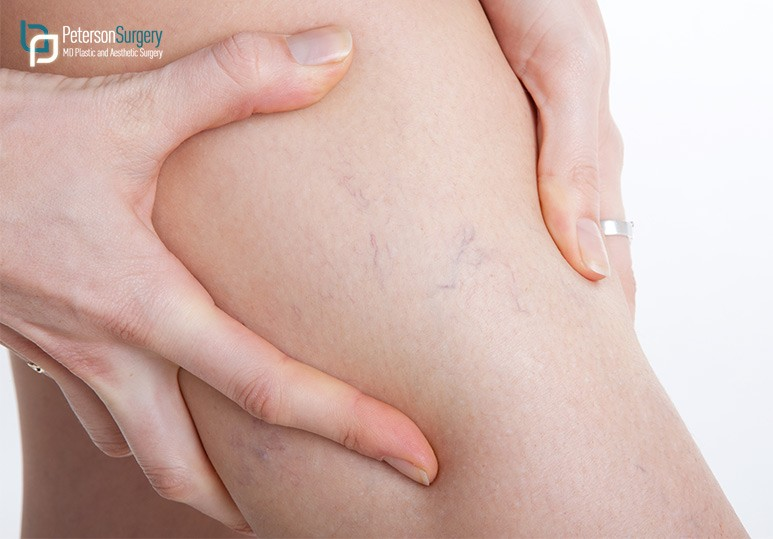 Spider Vein Therapy Kelowna