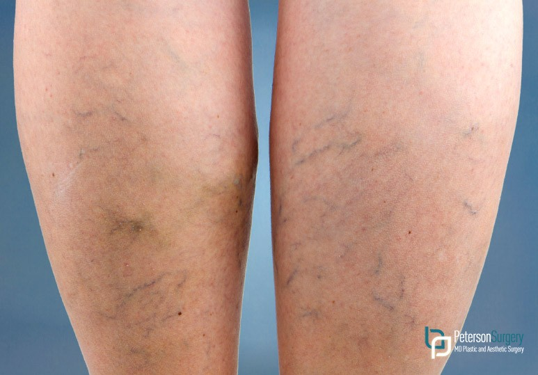 How to Get Rid of Your Spider Veins
