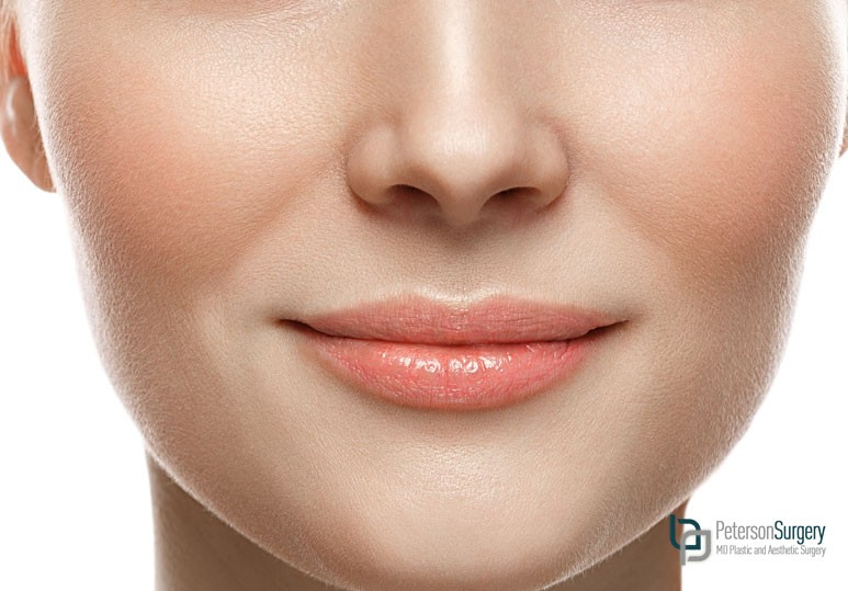 kelowna cheek rejuvenation