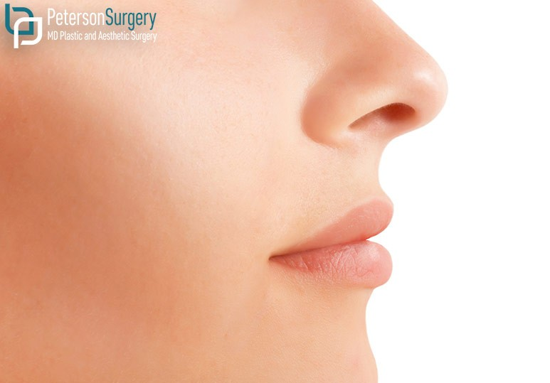 Dr. Brian Peterson Kelowna Plastic Surgeon 4 Types of Nasal Surgery