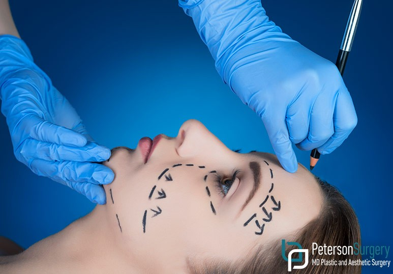 Dr. Brian Peterson Kelowna Plastic Surgeon  6 Signs You May Want to Consider A Plastic Surgery Revision