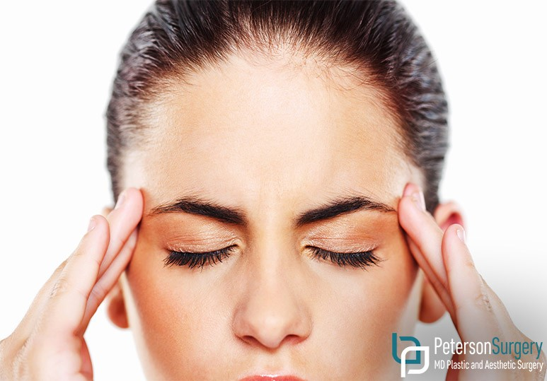 Peterson MD Kelowna How Botox Can Prevent Chronic Migraines