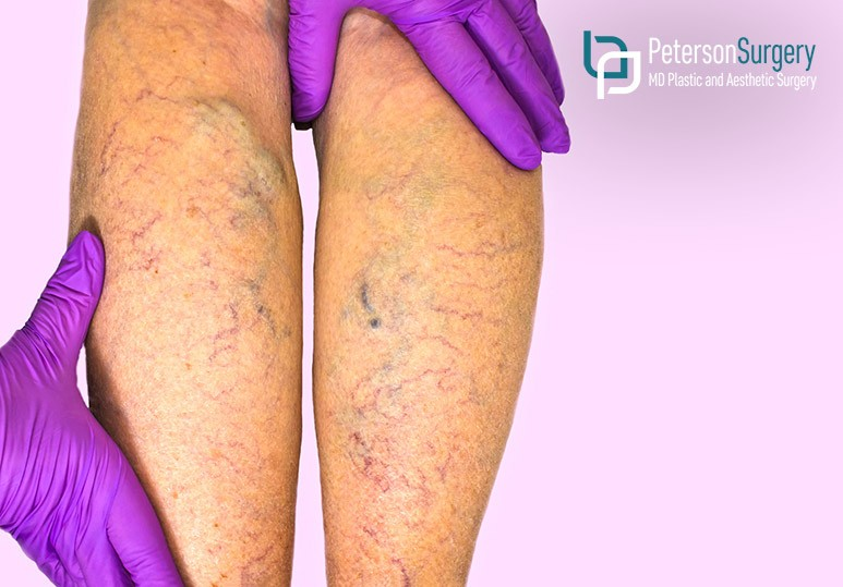 Everything You Need to Know About Spider Veins
