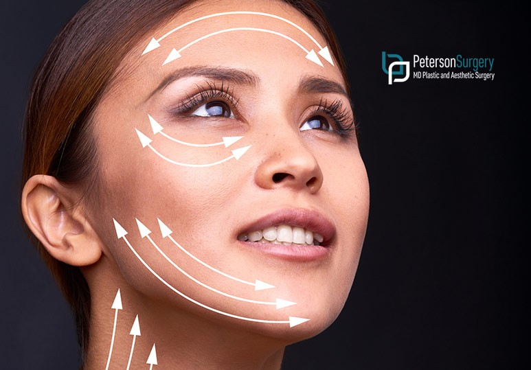 Peterson MD Facelift Procedure Primer