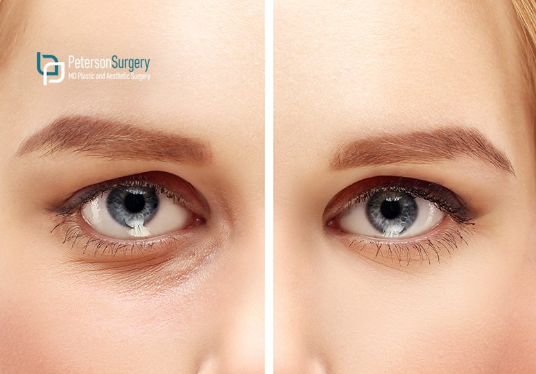 Peterson MD Correct Your Under Eye Circles With Fillers