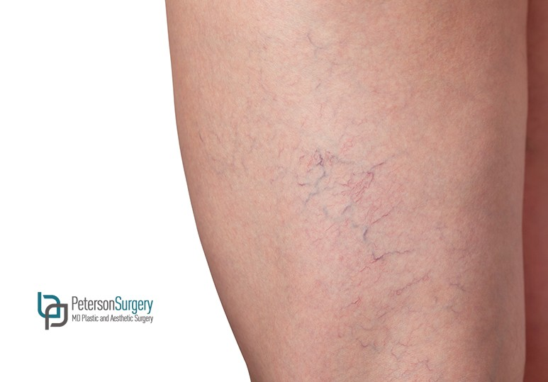 Spider Vein Therapy: Recovery And Downtime