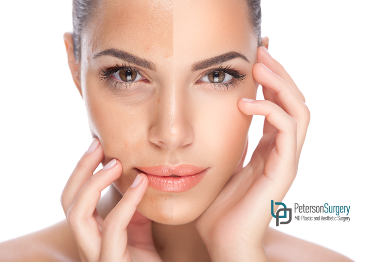 5 Ways a Perlane Dermal Filler Treatment Could Benefit You