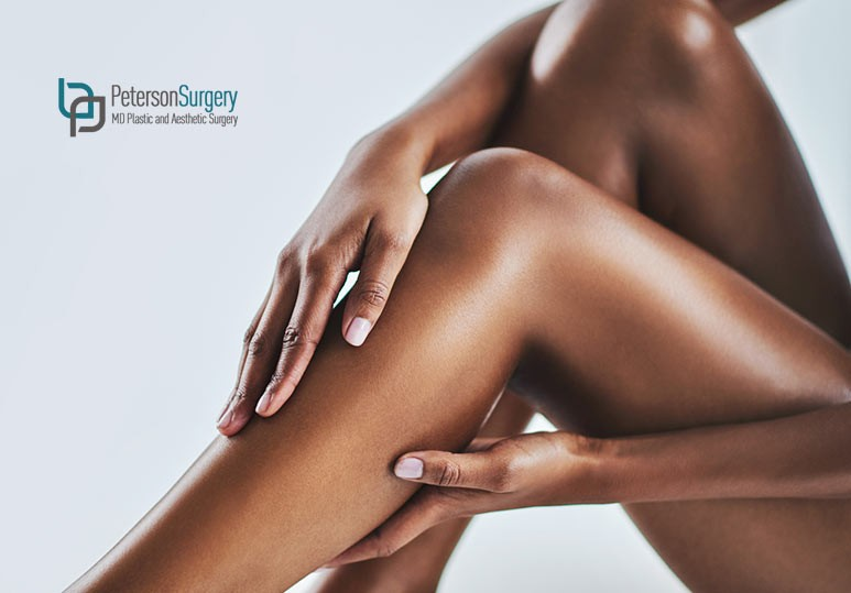 6 Reasons to Opt For Laser Hair Removal Treatments