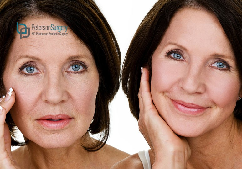 6 Ways to Ensure The Most Successful Facelift Recovery