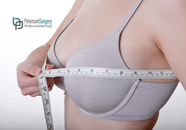 How to Know if a Breast Reduction Surgery is Right For You