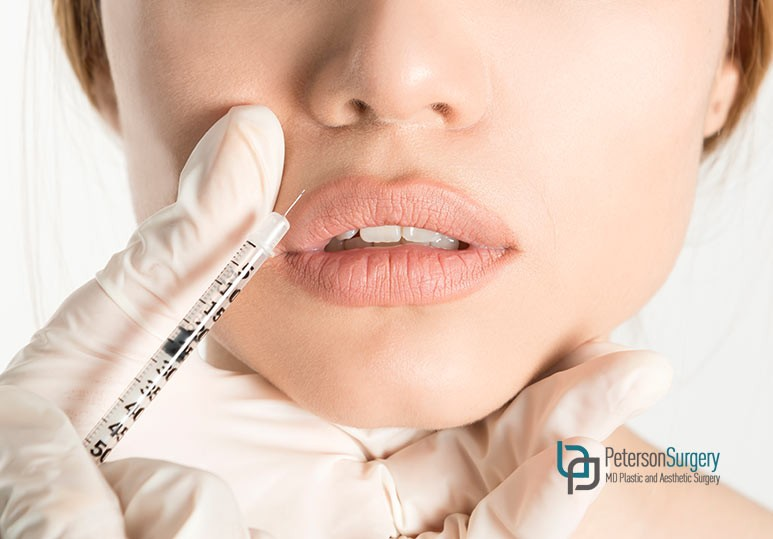 What to Expect From a Botox Treatment For Marionette Lines