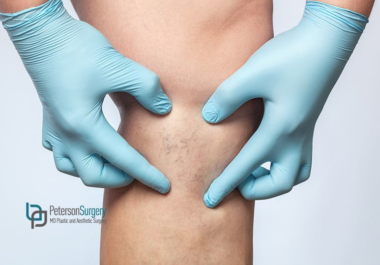 What You Need to Know About Spider Vein Therapy