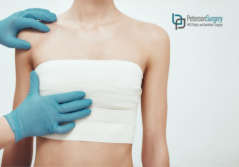 4 Main Types of Cosmetic Breast Surgery