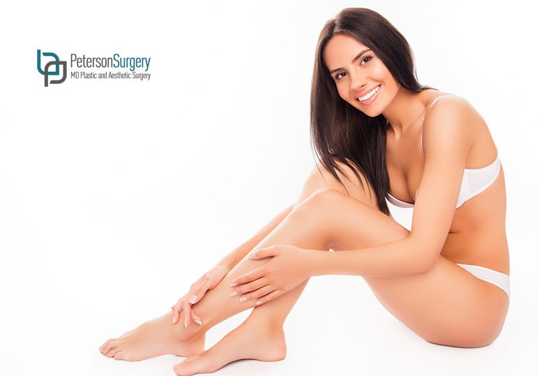 4 Incredible Benefits of Modern Varicose Vein Treatments