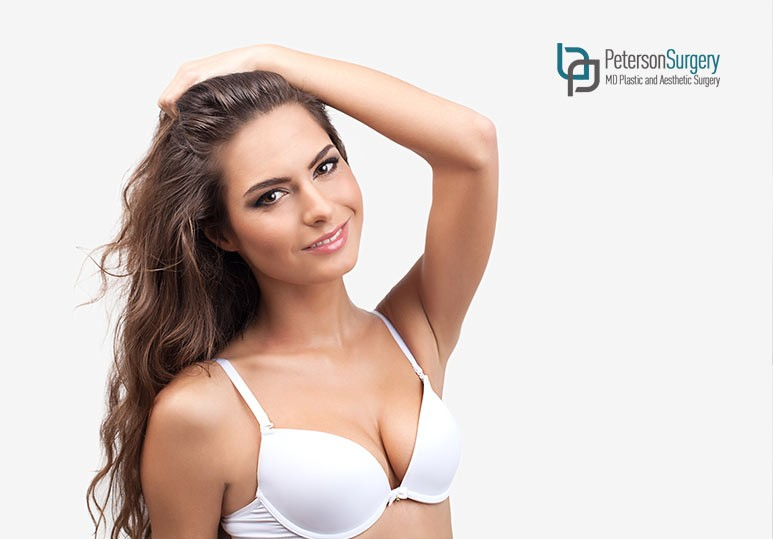 Your Total Guide to a Breast Augmentation Mastopexy