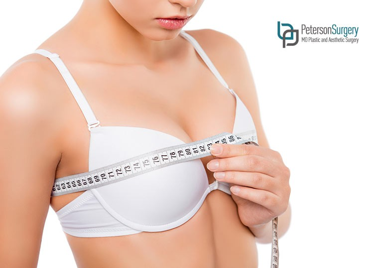 Your Complete Guide to Having a Breast Lift