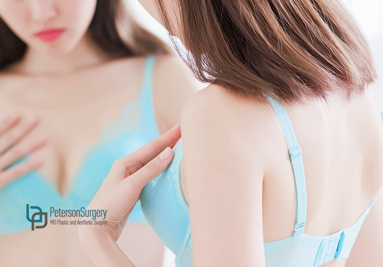 3 Factors to Consider When Deciding Between a Breast Lift vs Augmentation
