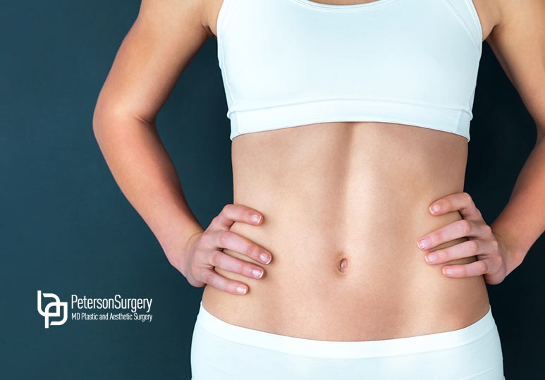 kelowna tummy tuck, kelowna abdominoplasty, kelowna plastic surgery, kelowna plastic surgeon, plastic surgery in kelowna, best plastic surgeon kelowna, virtual plastic surgery consult, kelowna breast augmentation mastopexy, Peterson Surgery