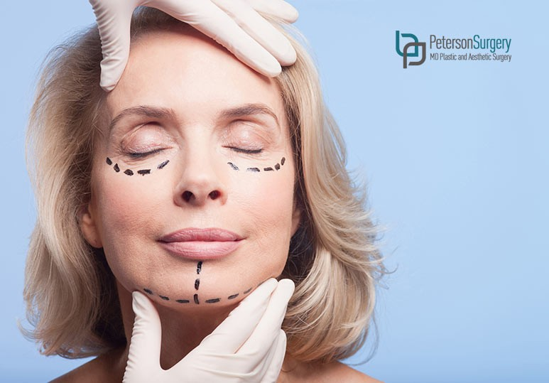 Everything You Need To Know About Chin Liposuction