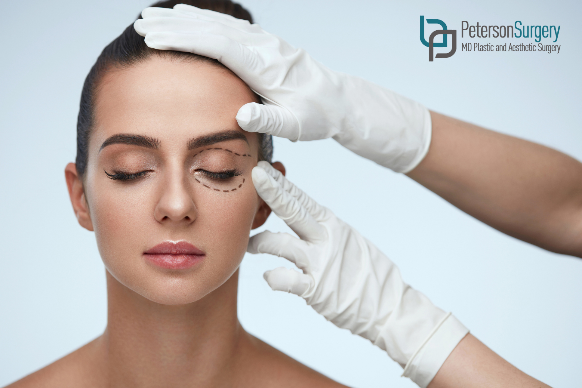 Be Prepared For Eyelid Surgery By Knowing These 7 Things!