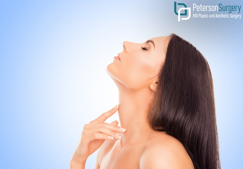 Peterson MD Kelowna BC What to Expect From Your Necklift Recovery