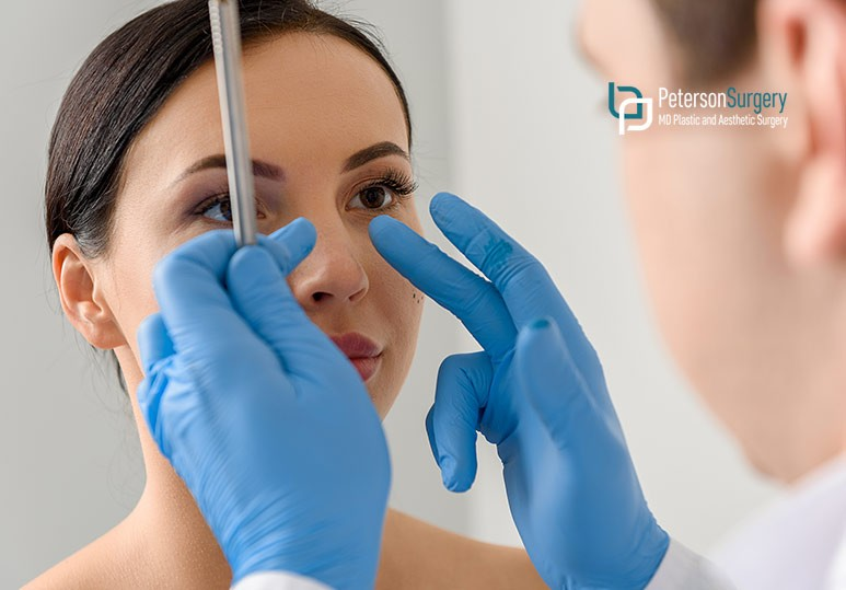 Nasal Surgery For Medical Reasons - Kelowna Plastic Surgery