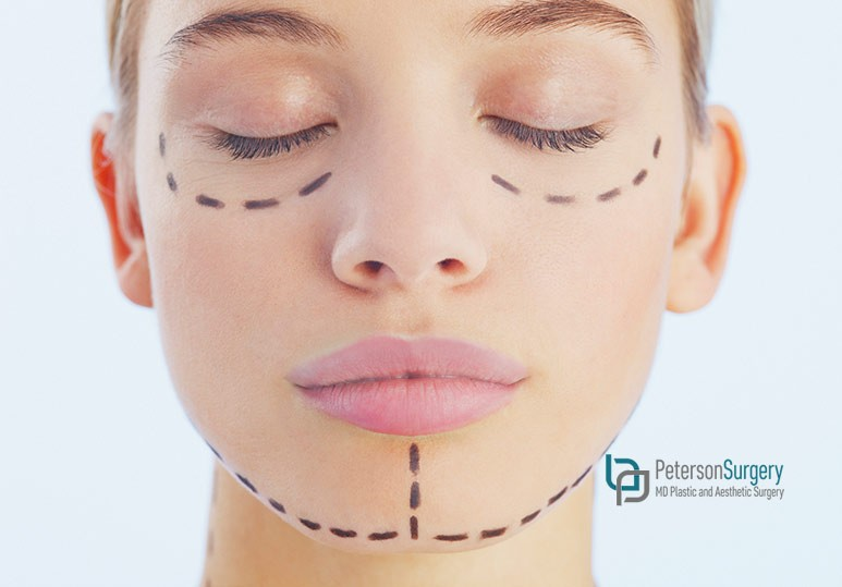 What Are Facial Implants - Kelowna Plastic Surgeon