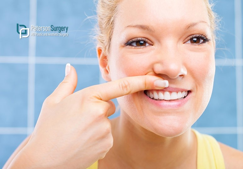 How Botox Can Fix A Gummy Smile - Tips From Kelowna Botox Experts