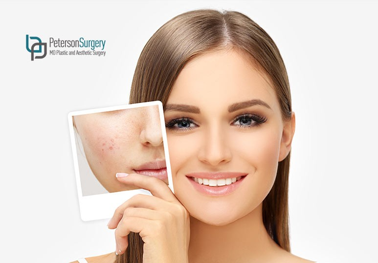 3 Signs You Should See a Skin Specialist For Your Acne