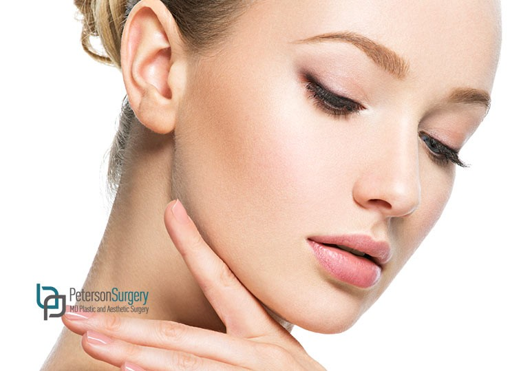 4 Reasons You Should Consider a Chin Augmentation