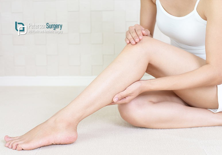 Everything You Need to Know About V Beam Therapy For Spider Veins