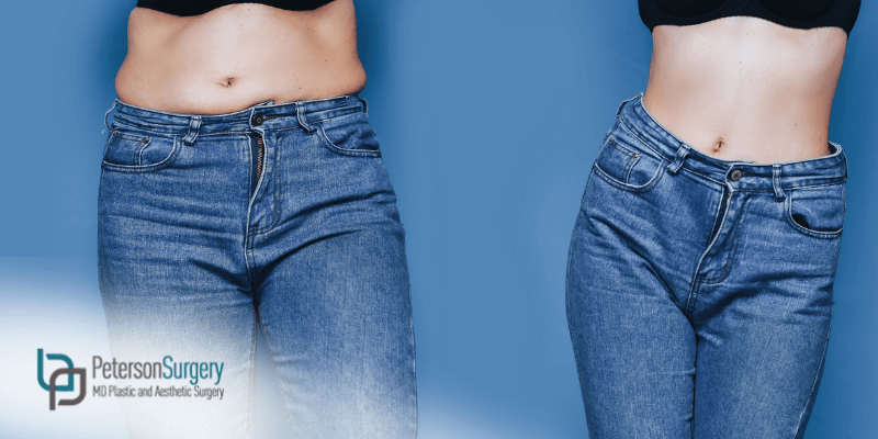 Body Contouring: Tummy Tuck Or Liposuction? Which Should I Consider?