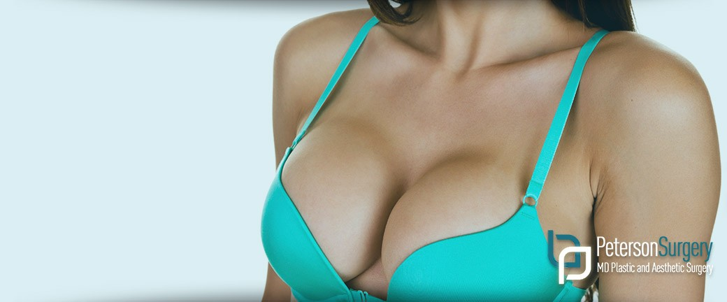Breast Augmentation, Mammoplasty