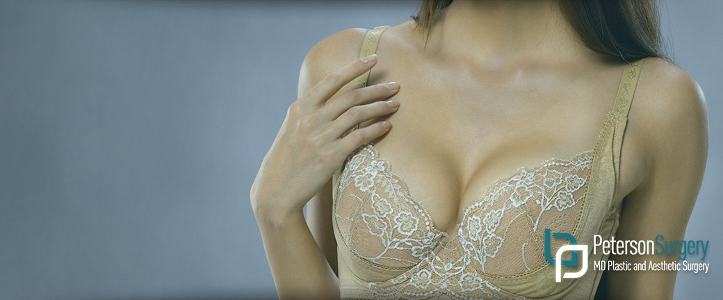 breast augmentation mastopexy kelowna