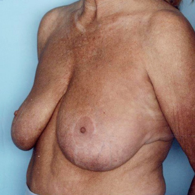 Breast lift with own tissue augmentation, auto-augmentation breast lift