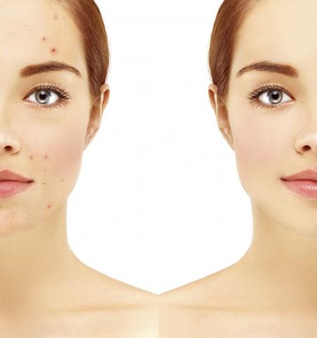 Okanagan Skin Care: Acne Treatment