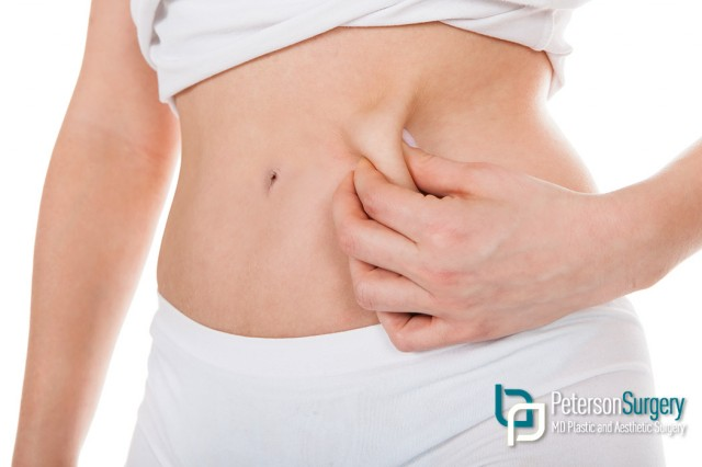 Liposuction Procedures in British Columbia