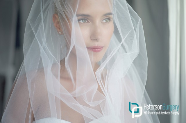 Brides-to-Be are Saying 'I Do' to Plastic Surgery