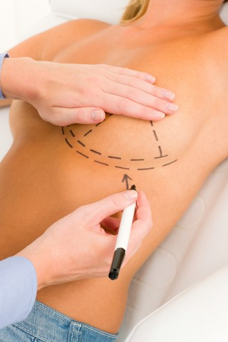 4 Reasons Women Opt for a Breast Lift Instead of Breast Implants