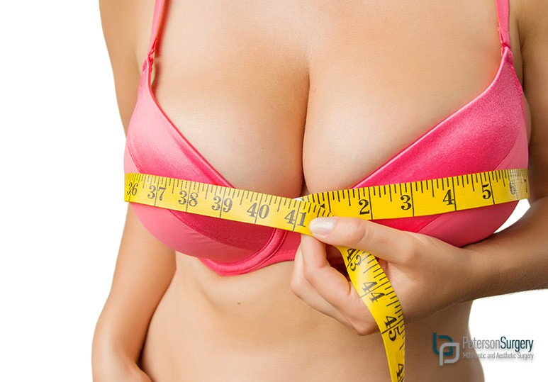 breast reduction kelowna