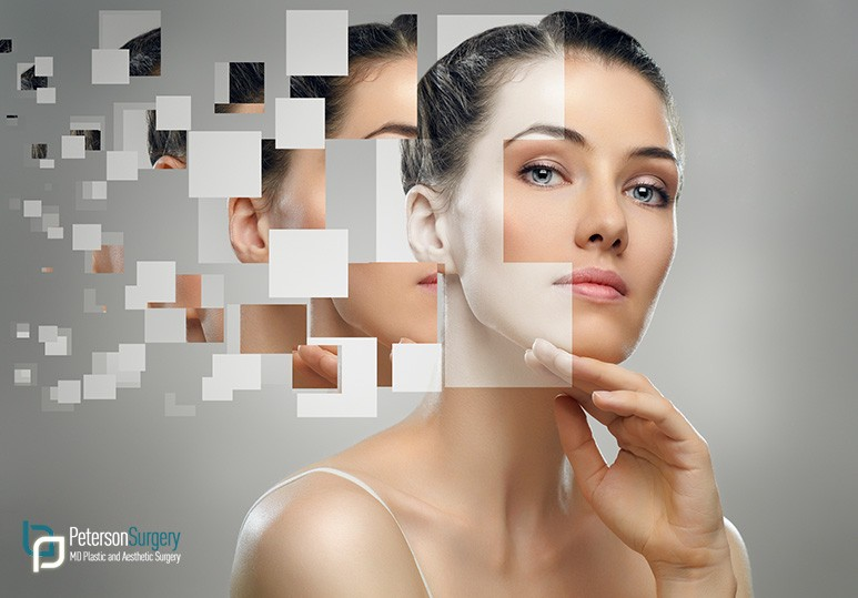 visia skin analysis kelowna
