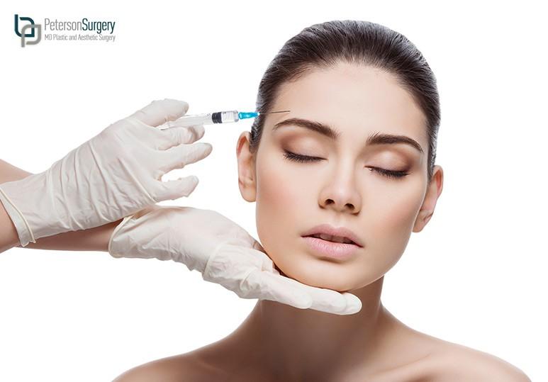 kelowna botox treatments