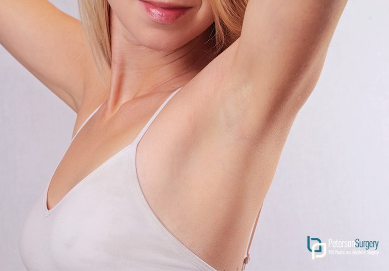 Laser Hair Removal Kelowna