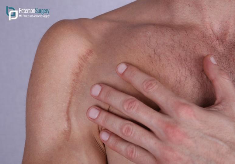 permanent makeup for scars kelowna