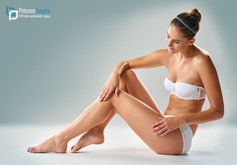 Achieve Your Ideal Body With These 3 Body Contouring Procedures